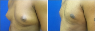 gynecomastia-before-after-and-after-photo-12-3