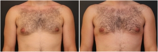 gynecomastia-before-after-and-after-photo-13-1