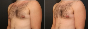 gynecomastia-before-after-and-after-photo-13-2