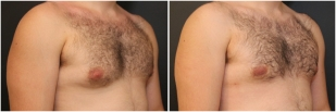 gynecomastia-before-after-and-after-photo-13-3