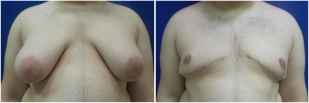 gynecomastia-before-after-and-after-photo-14-1