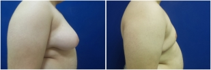gynecomastia-before-after-and-after-photo-14-2