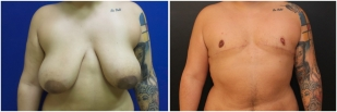 top-surgery-before-after-and-after-photo-10-1