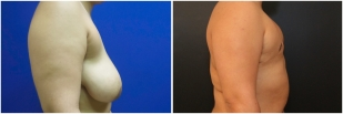 top-surgery-before-after-and-after-photo-10-2